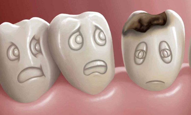 https://www.zyadda.com/causes-of-tooth-decay-despite-cleaning/